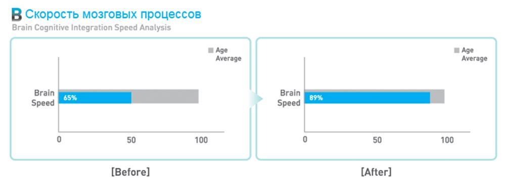 Скорость мозговых процессов